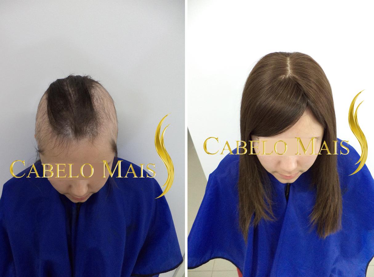 mega-hair-porto-alegre-antes-depois-1