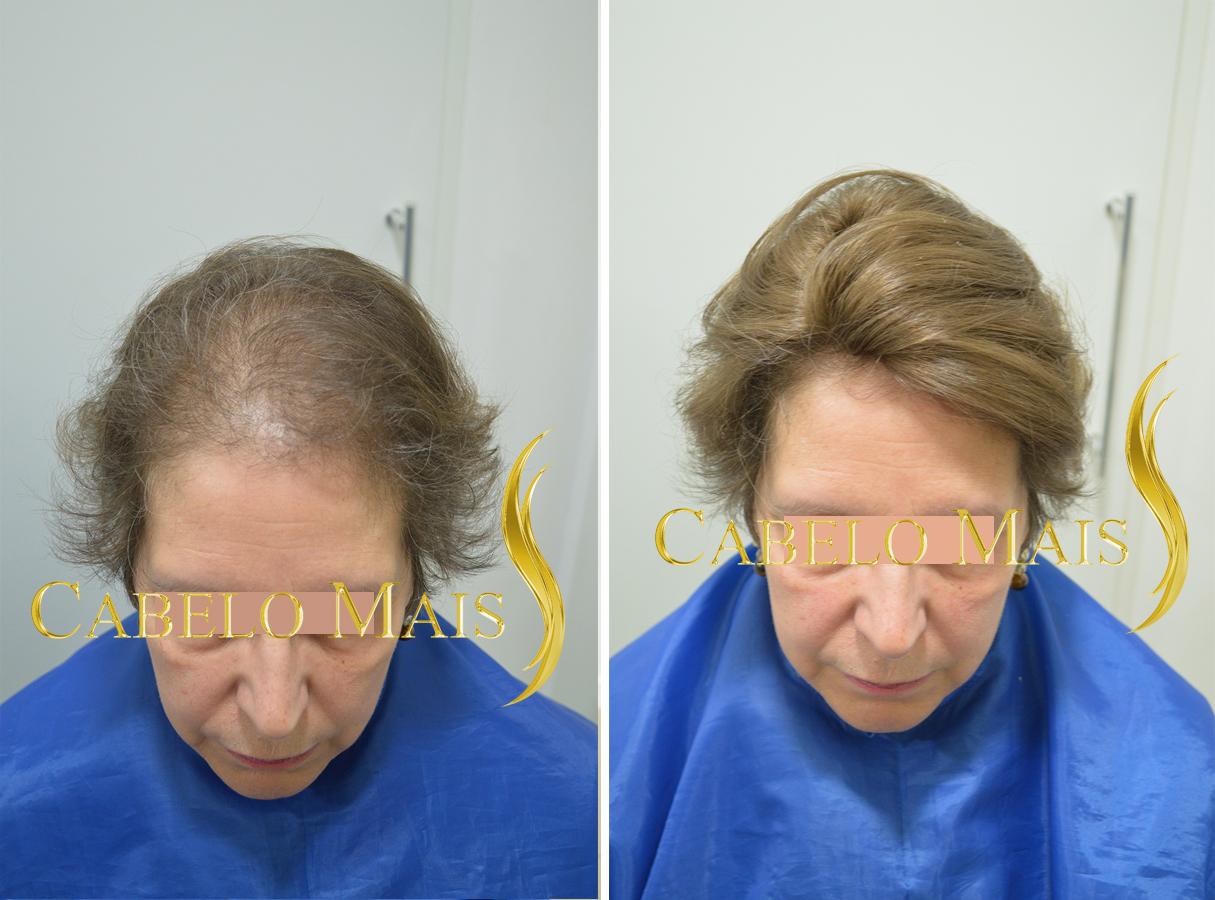 mega-hair-porto-alegre-antes-depois-11