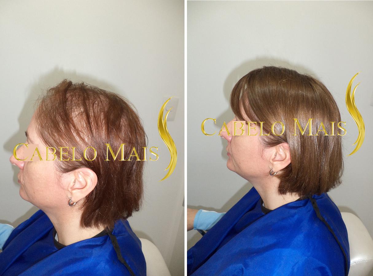 mega-hair-porto-alegre-antes-depois-14