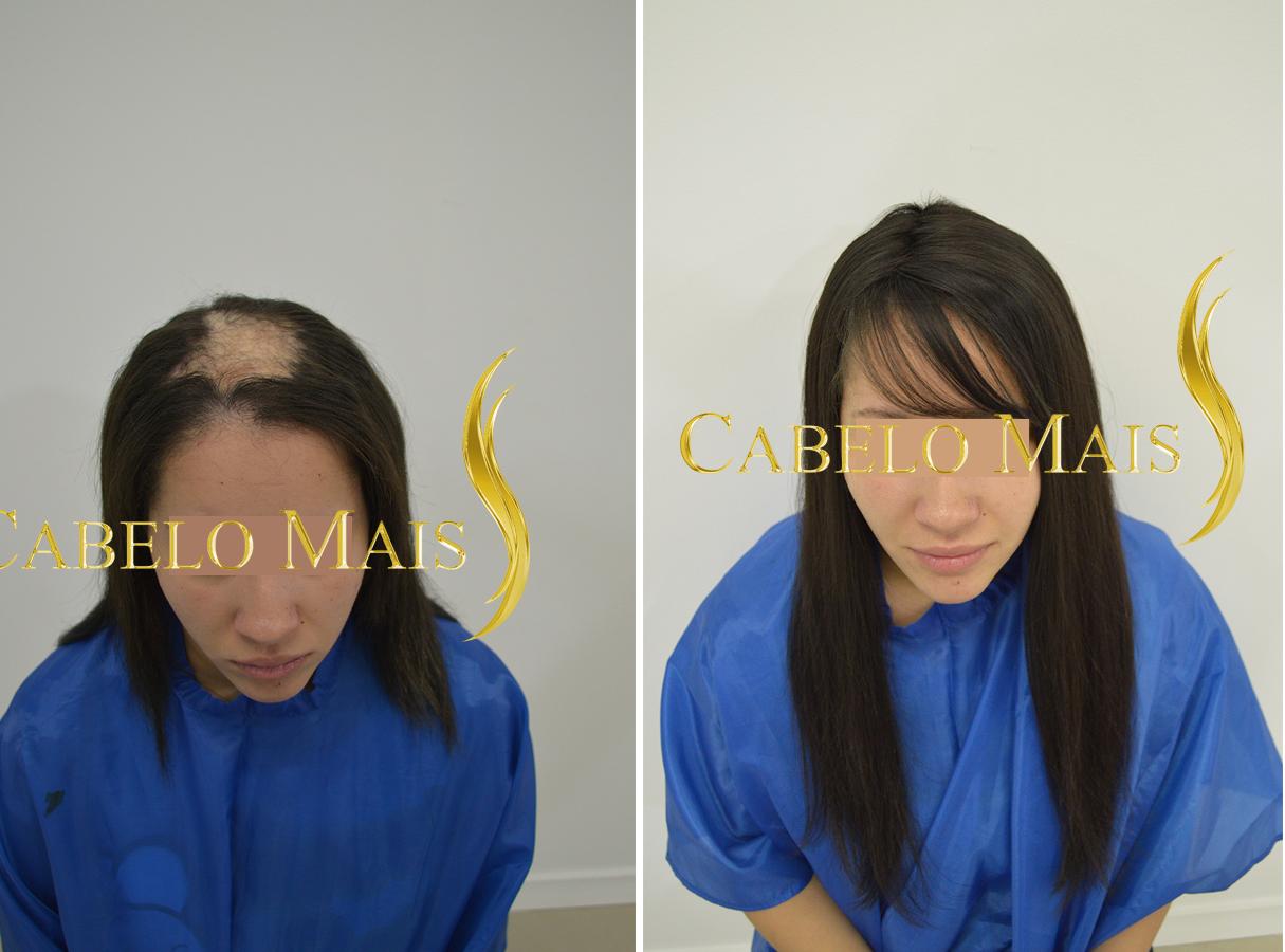 mega-hair-porto-alegre-antes-depois-16