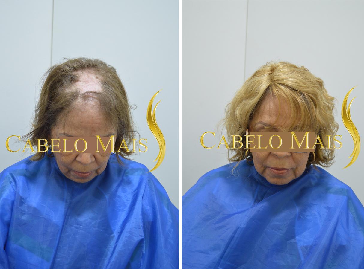 mega-hair-porto-alegre-antes-depois-17