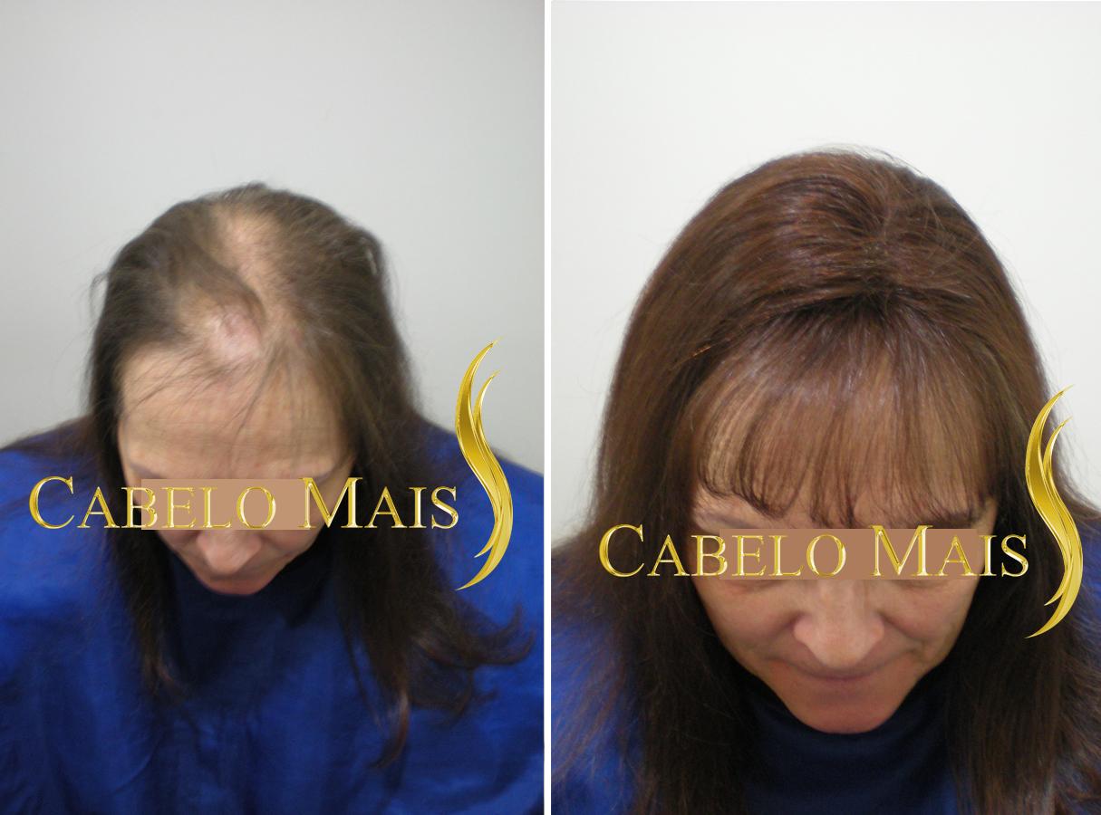 mega-hair-porto-alegre-antes-depois-2