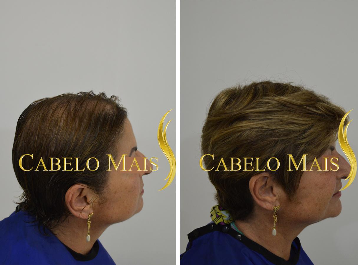 mega-hair-porto-alegre-antes-depois-20