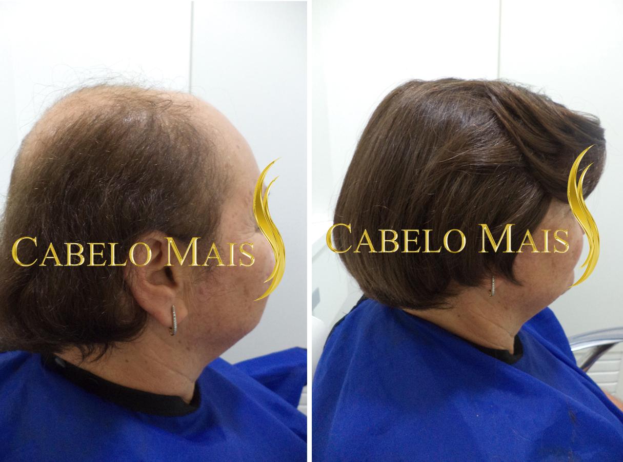 mega-hair-porto-alegre-antes-depois-21