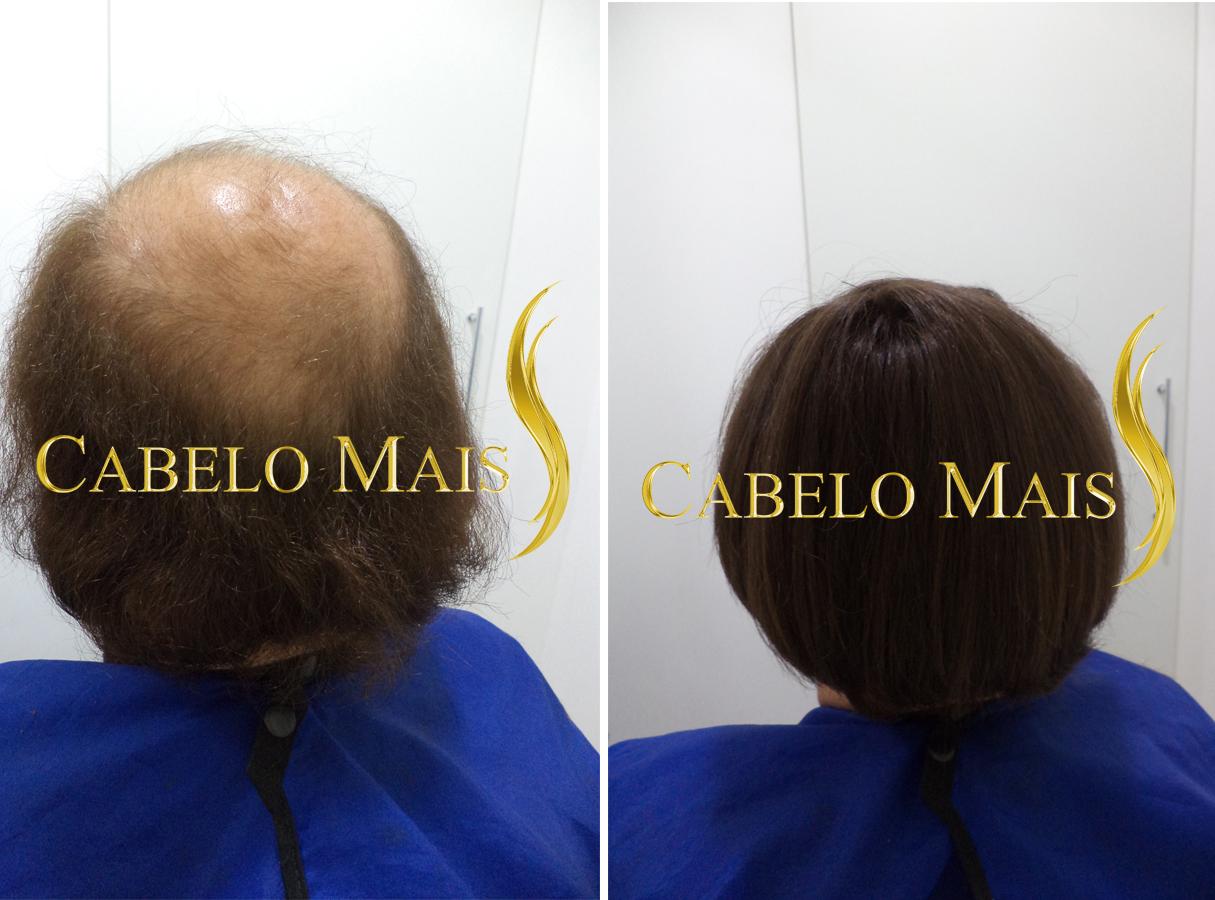 mega-hair-porto-alegre-antes-depois-22