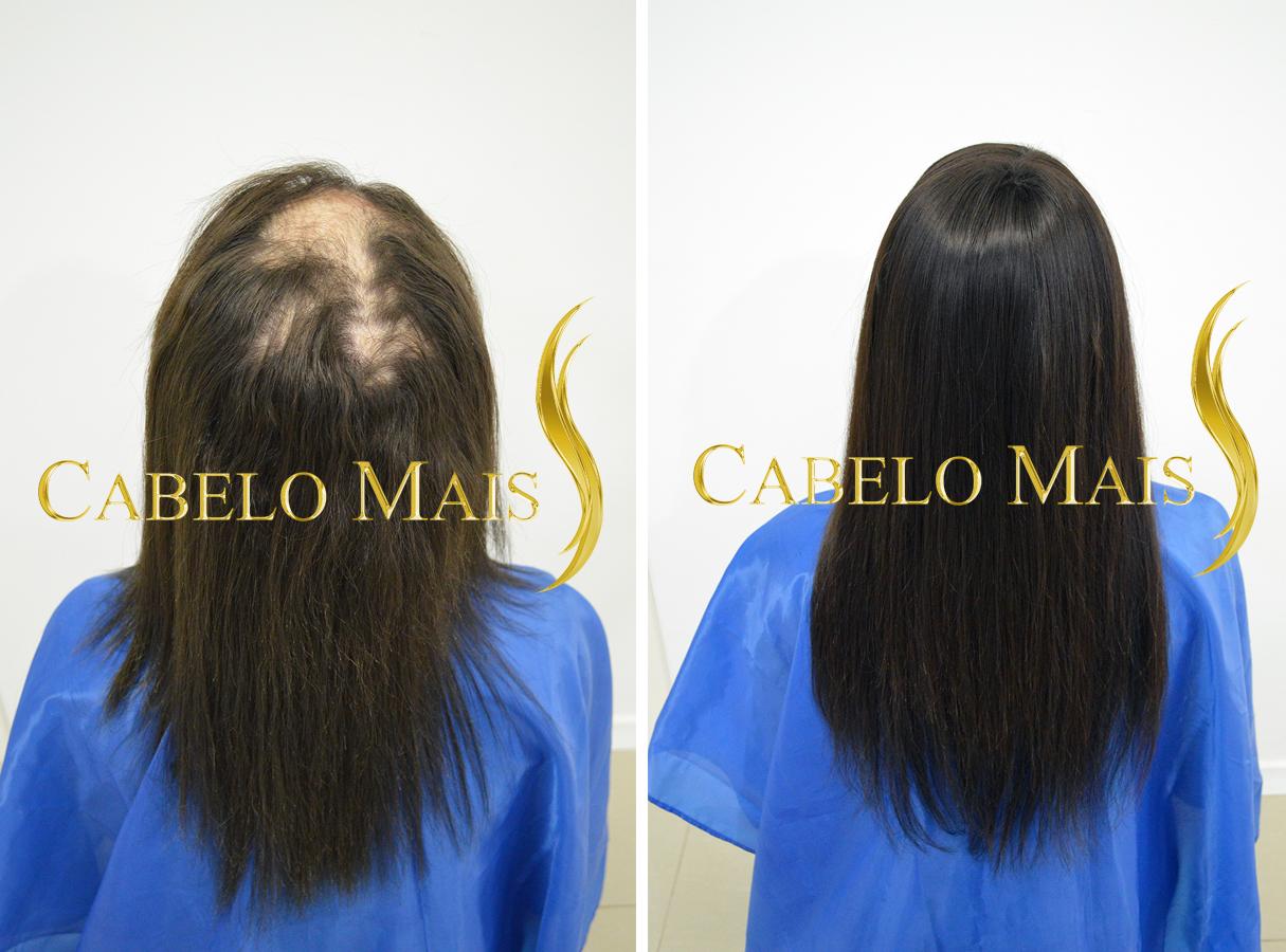 mega-hair-porto-alegre-antes-depois-23