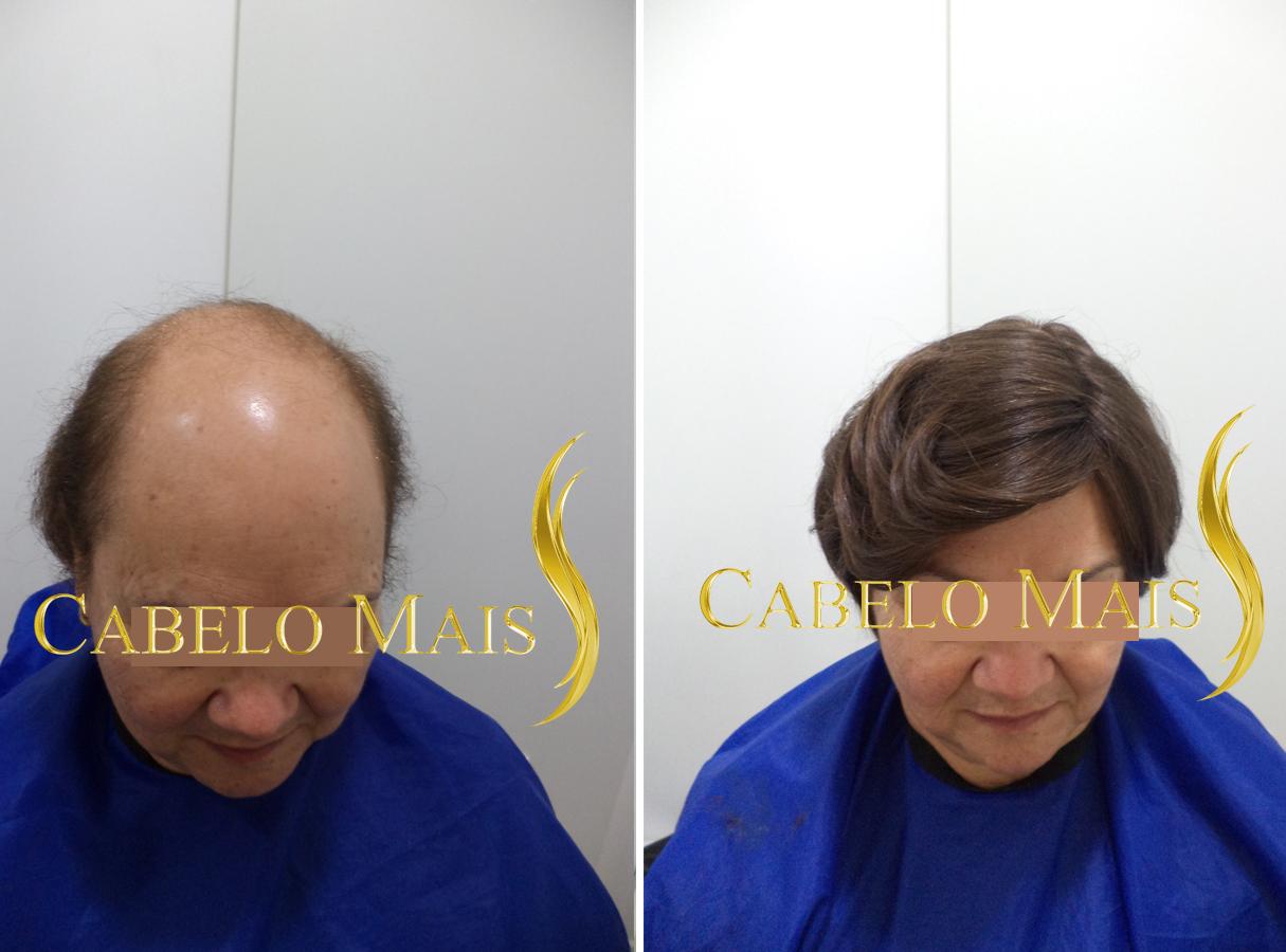mega-hair-porto-alegre-antes-depois-3