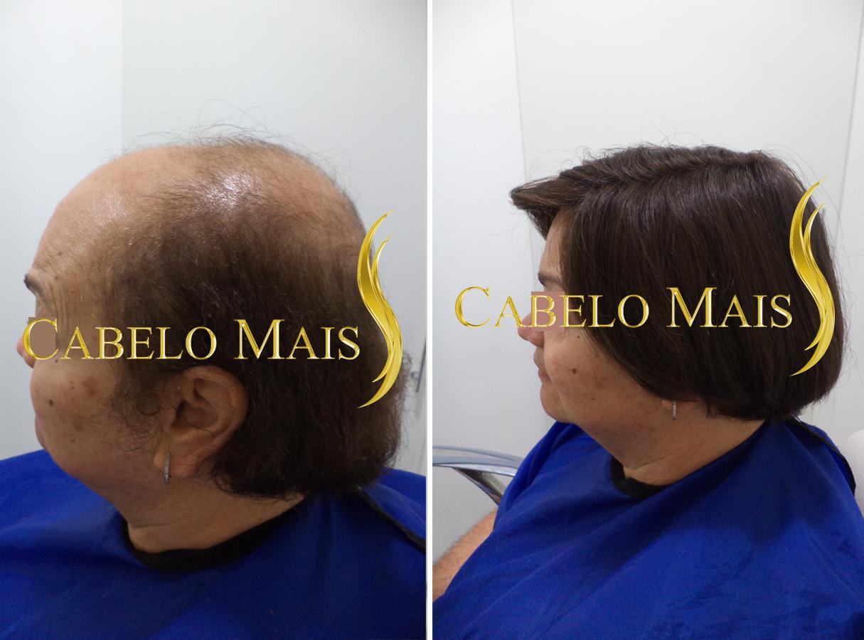 mega-hair-porto-alegre-antes-depois-4