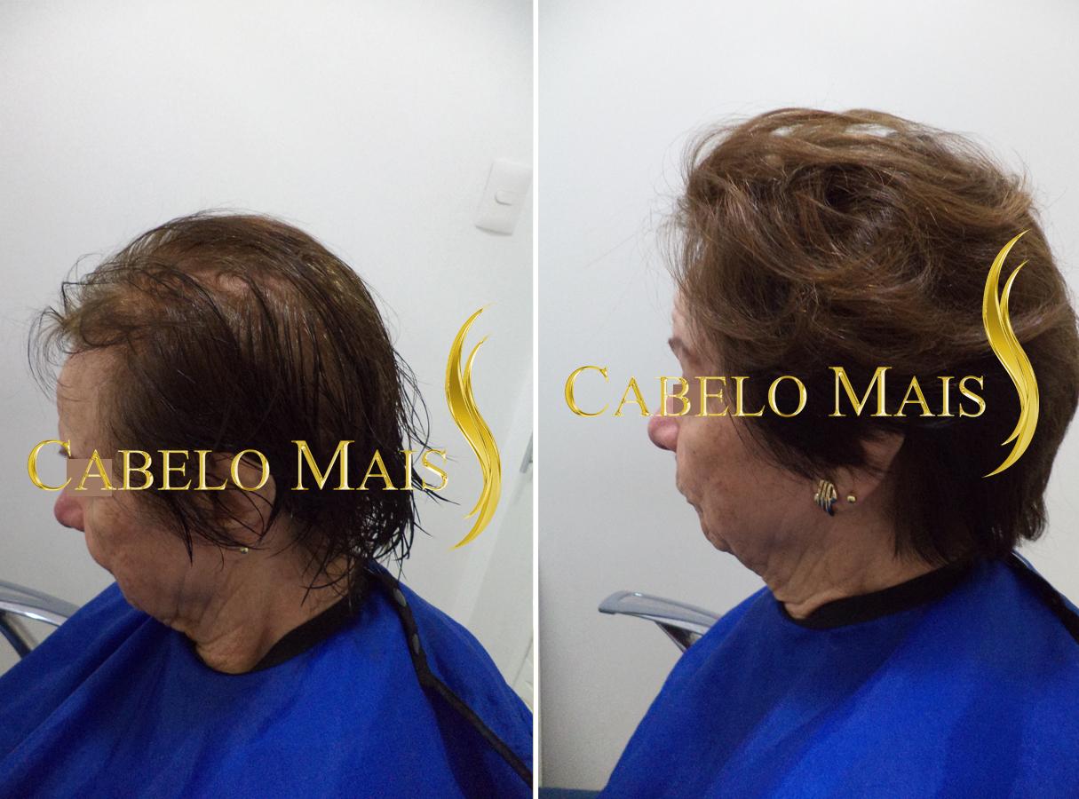 mega-hair-porto-alegre-antes-depois-6