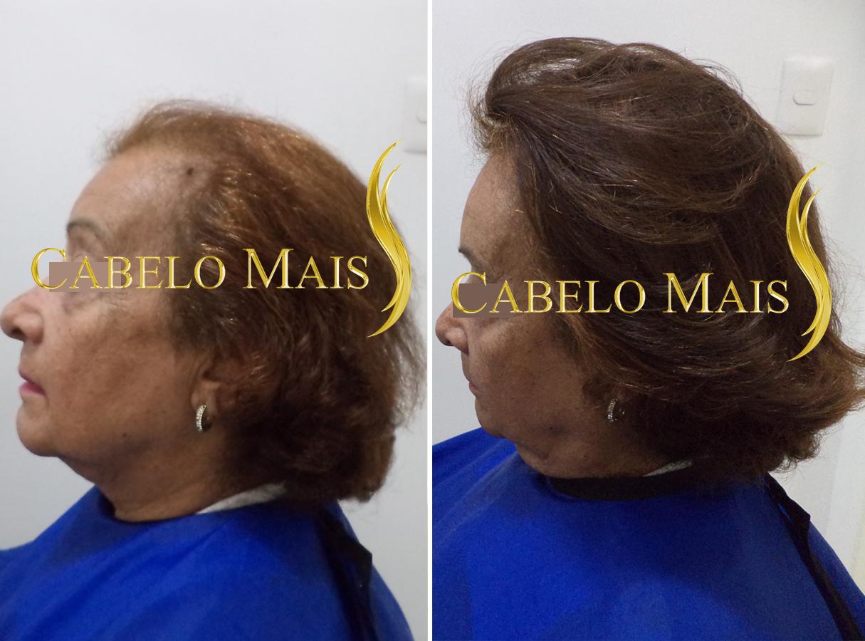 mega-hair-porto-alegre-antes-depois-8