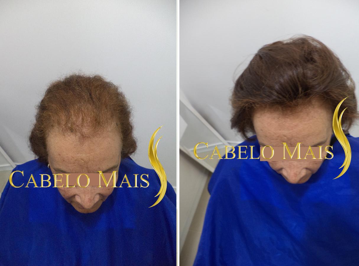 mega-hair-porto-alegre-antes-depois-9