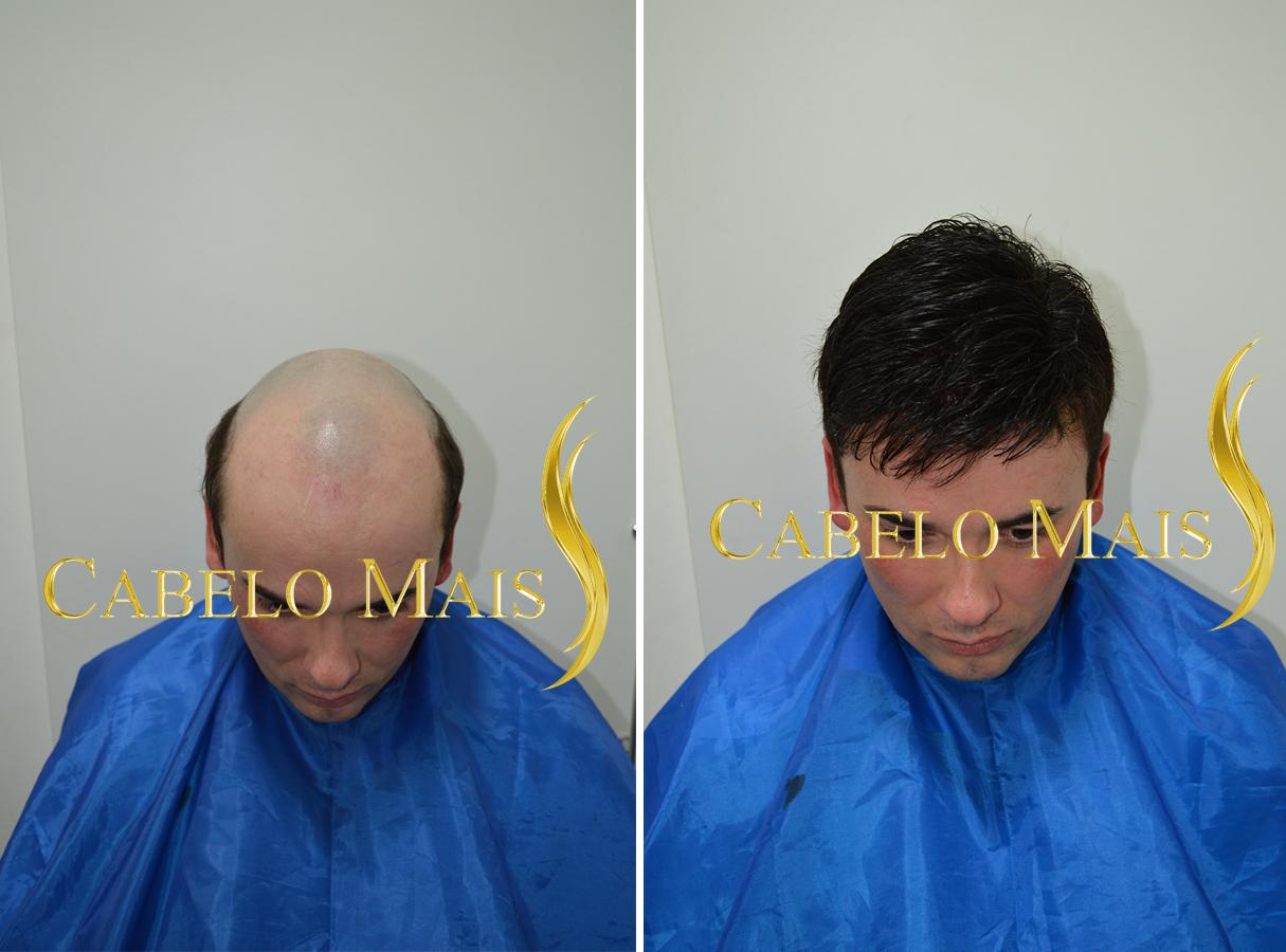 protese-capilar-masculina-cabelo-mais-1
