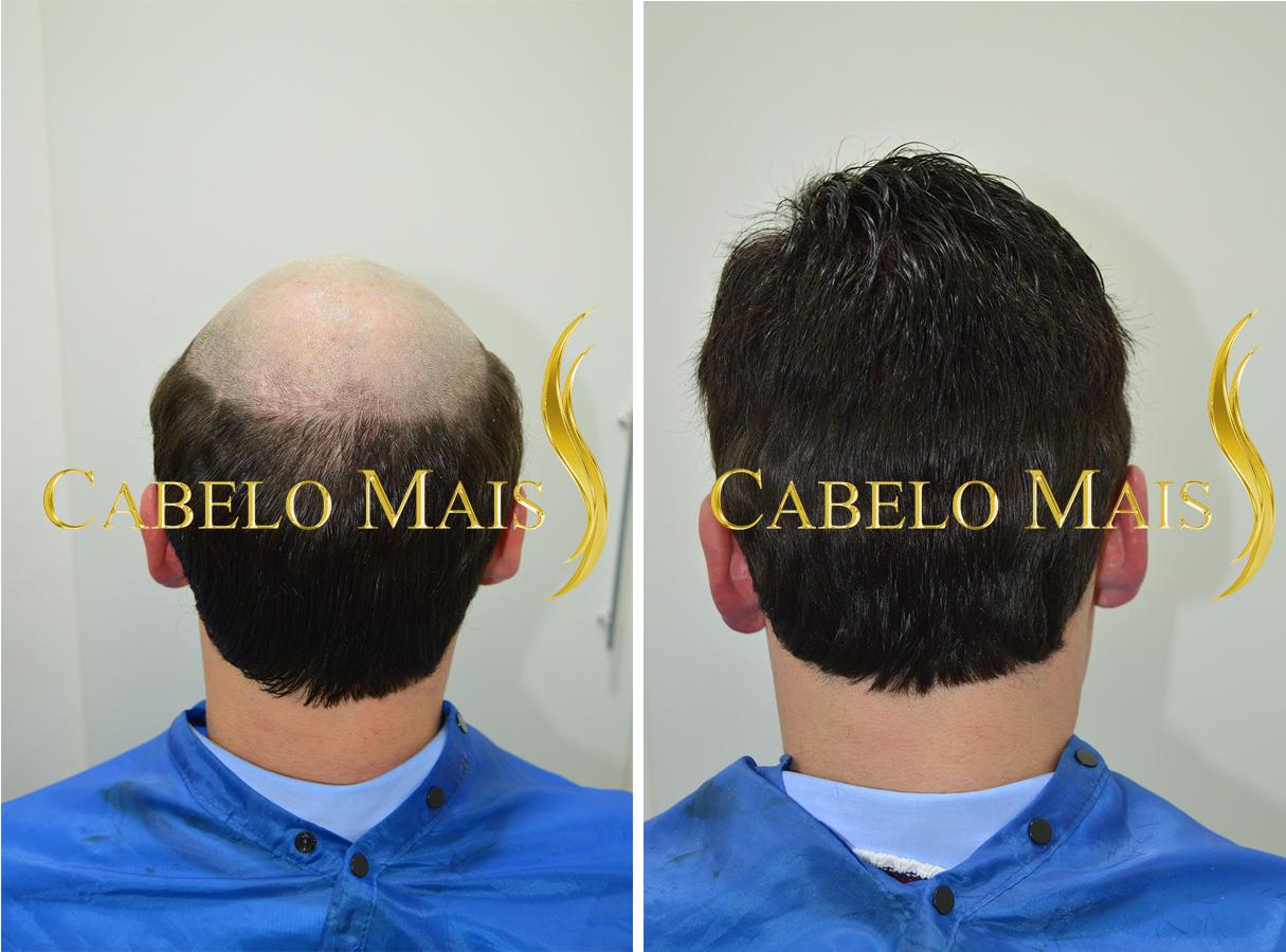 protese-capilar-masculina-cabelo-mais-3