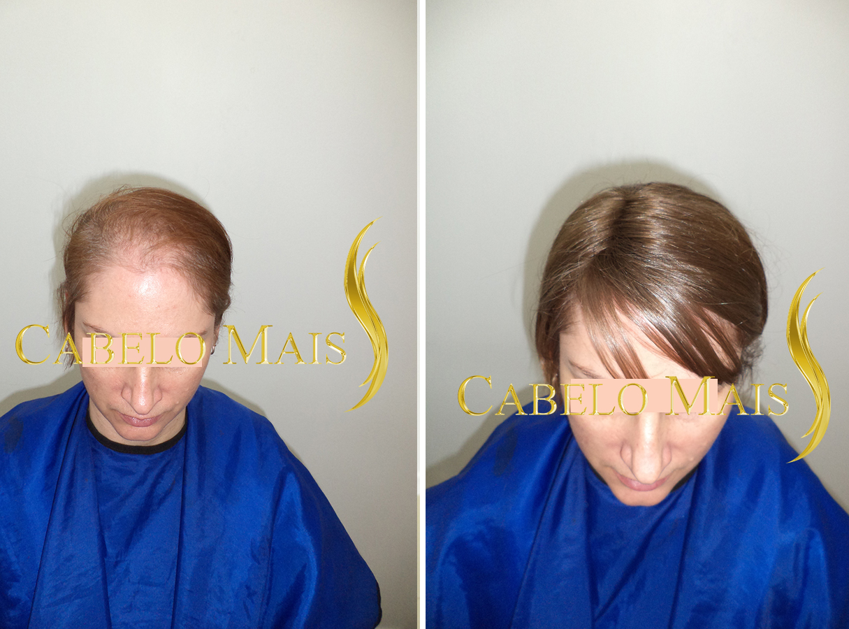 mega-hair-porto-alegre-antes-depois-10