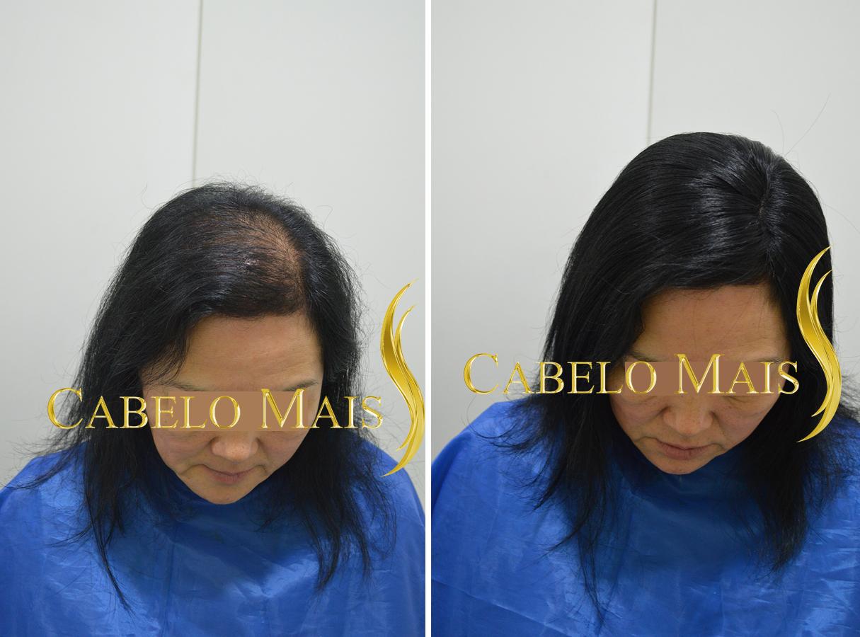 mega-hair-porto-alegre-antes-depois-13