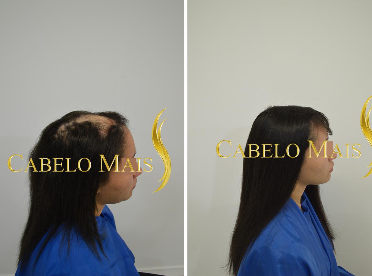 mega-hair-porto-alegre-antes-depois-15