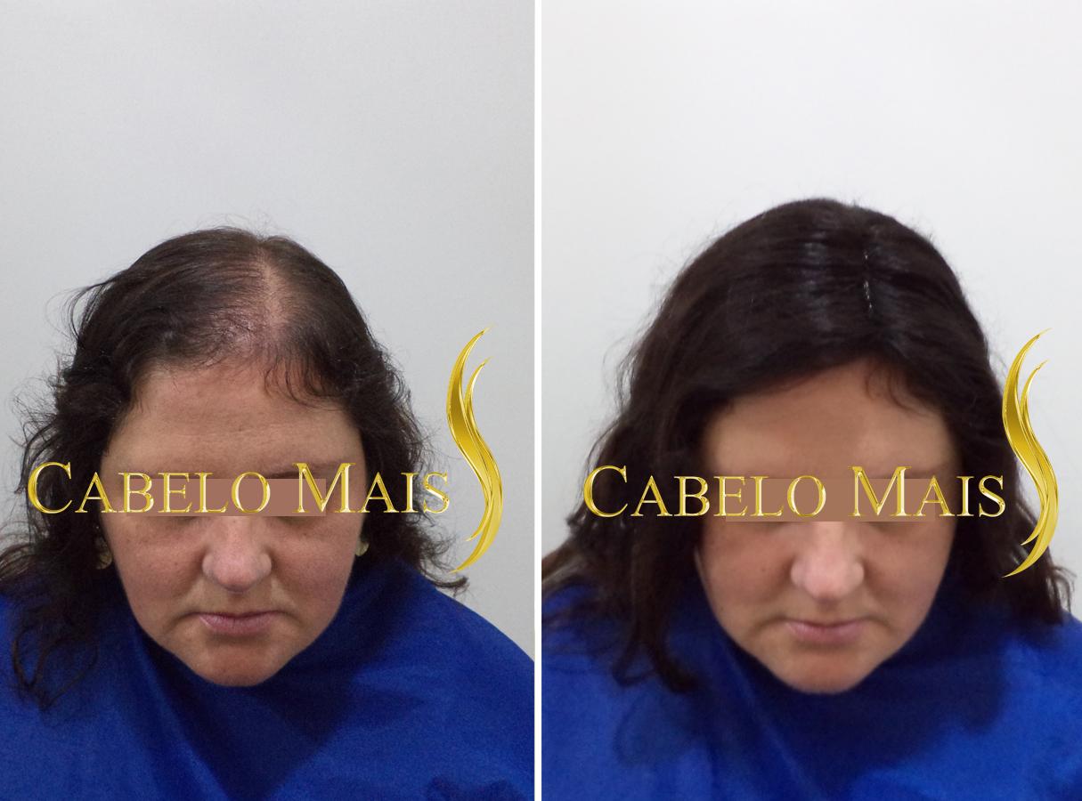 mega-hair-porto-alegre-antes-depois-7